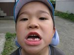 IMG_0599あつし歯2.JPG